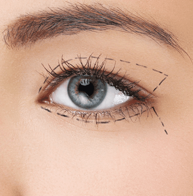 Chirurgie esthetique visage en tunisie